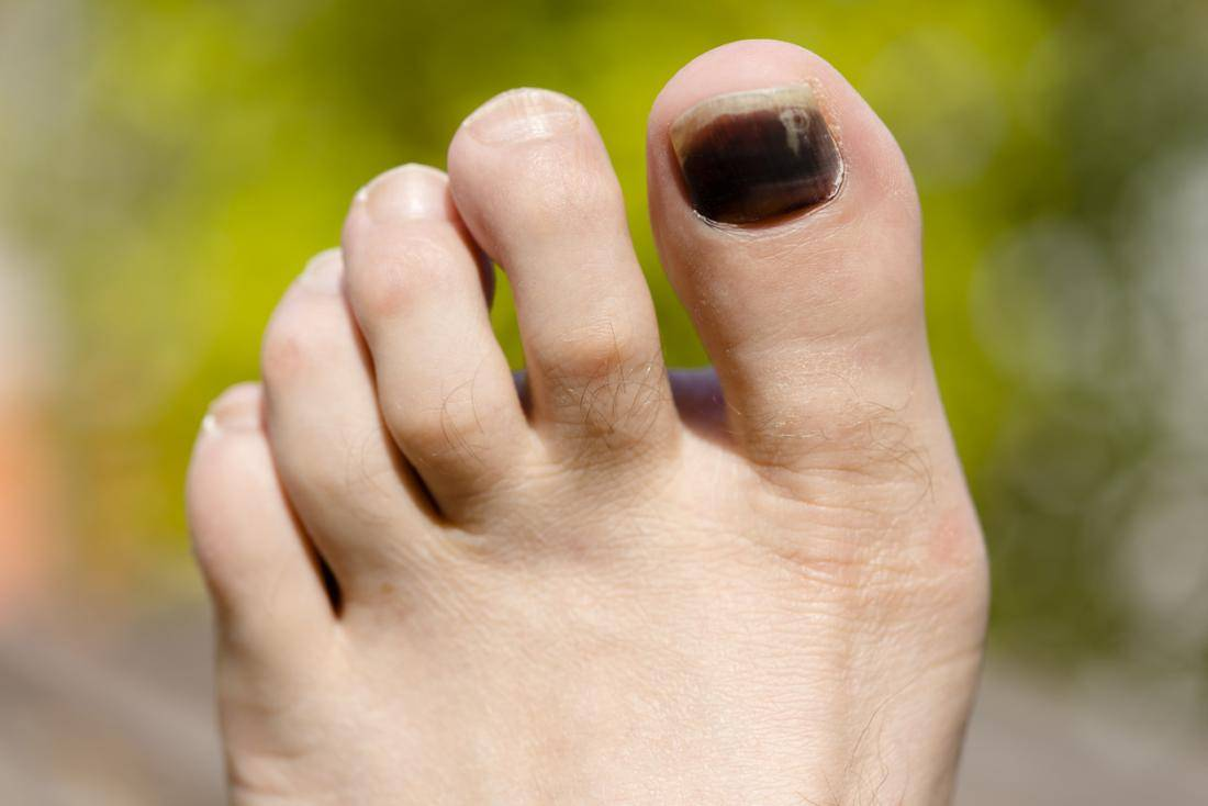Nail Problems | Premier Foot & Ankle Center | 5 Stars - Oakbrook ...
