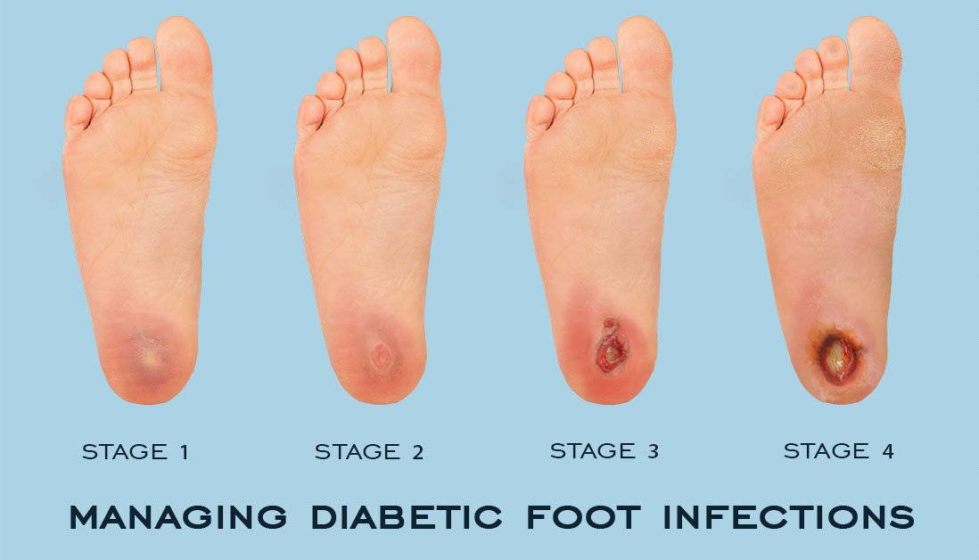 Diabetes And Your Feet Premier Foot Ankle Center 5 Stars