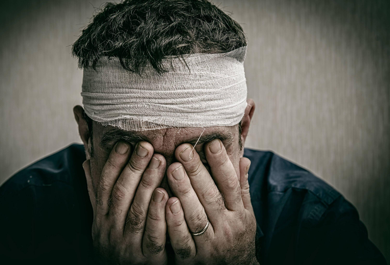 CBD Head Injury TBI