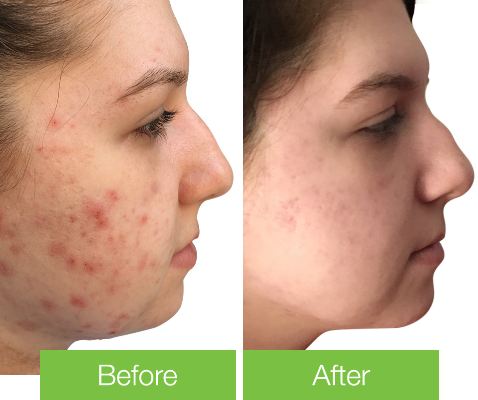 Sarah's Acne Before & After