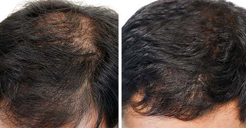 laser therapy for hair growth device before and after photos