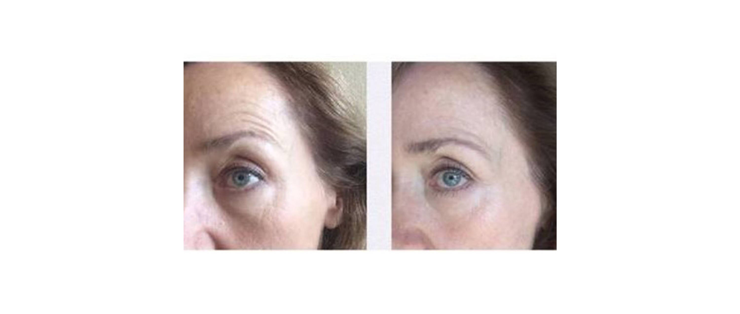 woman results under the eye after wearing deppatch with noticeably less puffy under eye