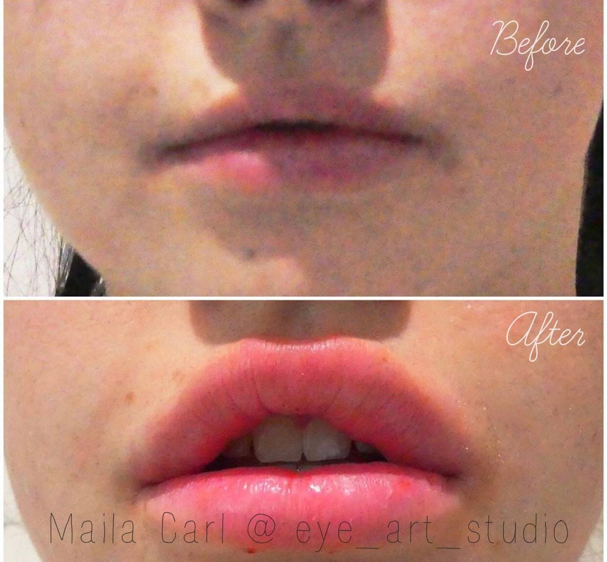 Lip Filler Melbourne
