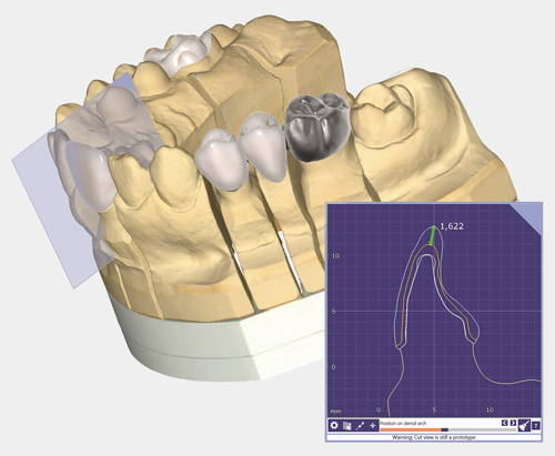 logiciel de CAO dentaire Exocad