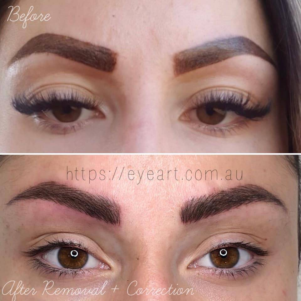 Eyebrow Microblading Correction Melbourne Brow Microblading Repair Melbourne Brow Tattoo Correction Eye Art Studio Get permanent eyebrow costs, benefits, cons, procedure of tattooing learn what it is, the costs and prices, benefits, semi permanent and permanent eyebrow tattooing and procedure. eyebrow microblading correction