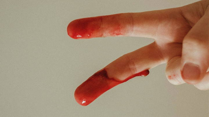 Blood on fingers
