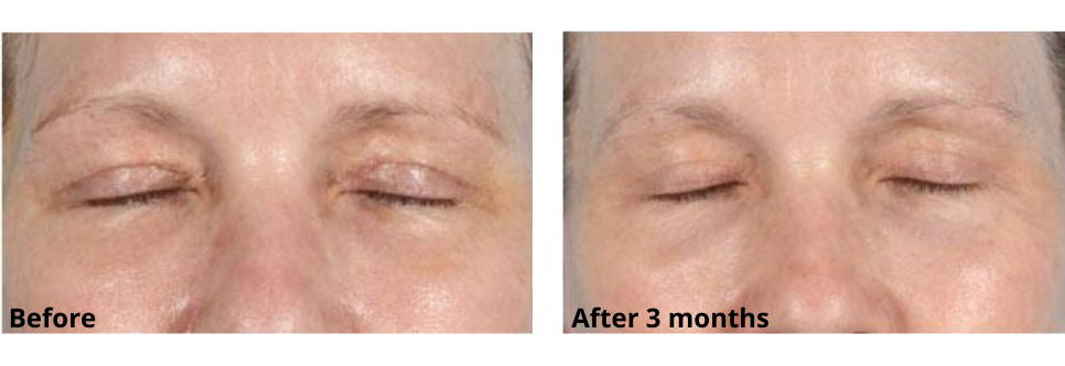 Upper Eyelid Before and After Using Skinuva Scar for 3 Months