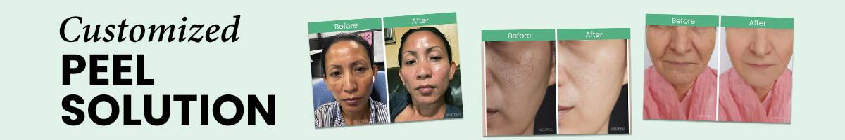Custom chemical face peel solution