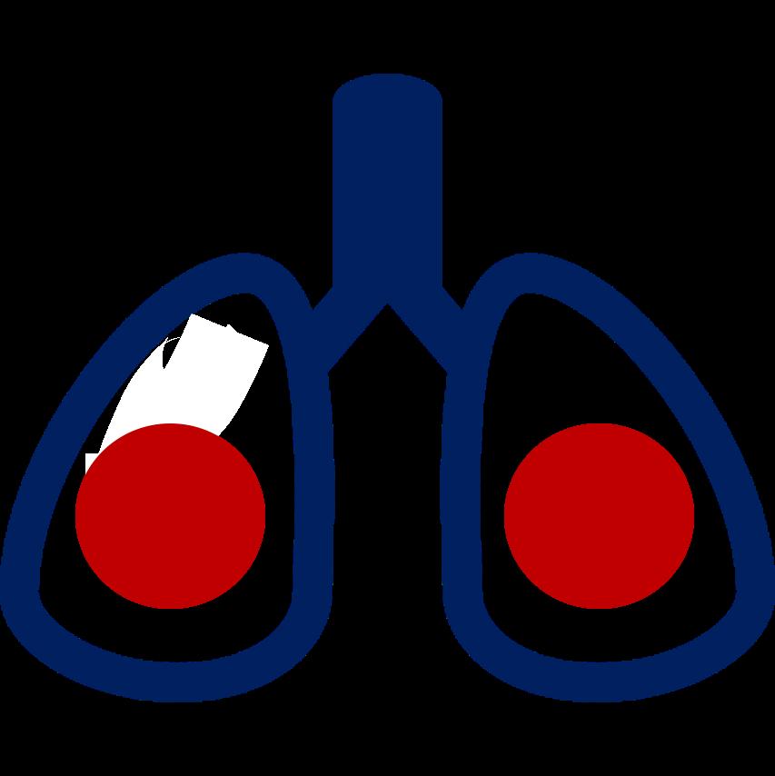 Romero bronquitis
