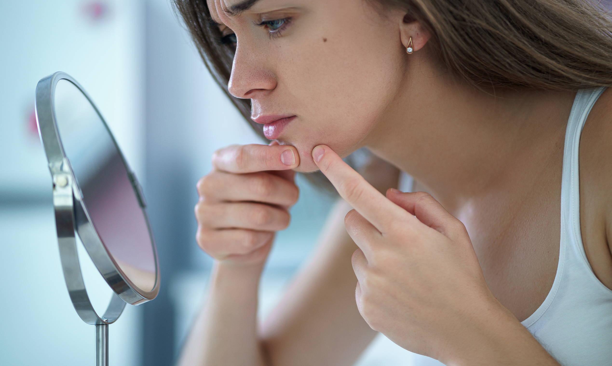 Girl, vérification, acné, dans, miroir