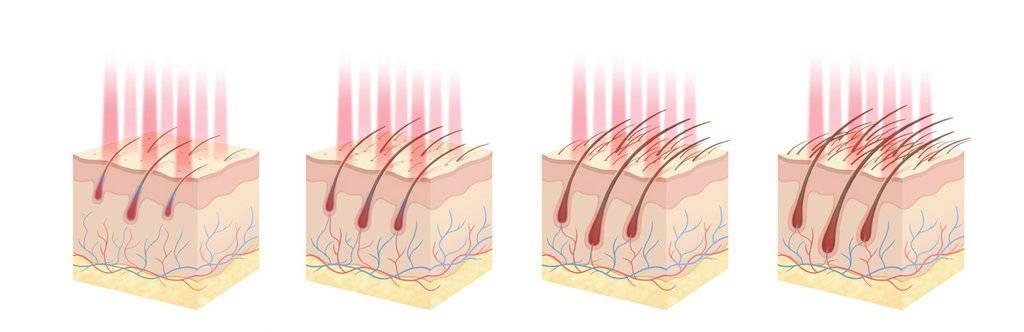LLLT Hair Growth Treatment