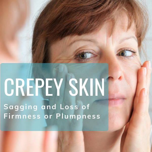 Crepey, Sagging Skin