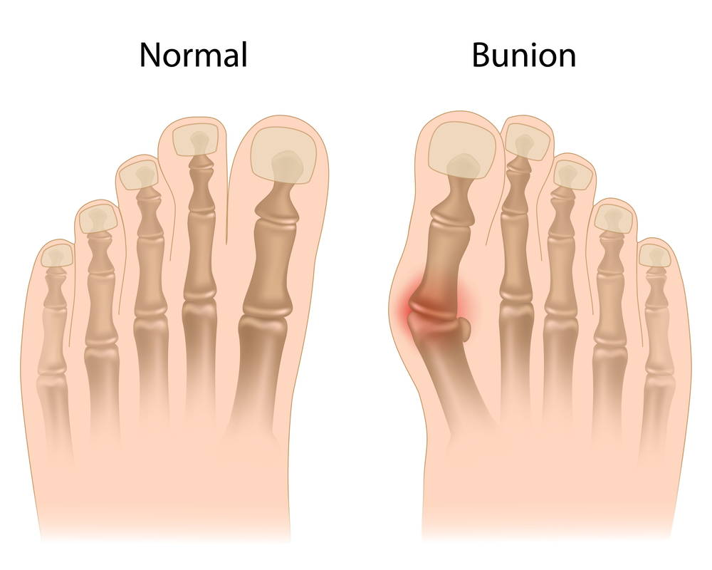 How Can I Get My Bunion Treated? Premier Foot & Ankle Center