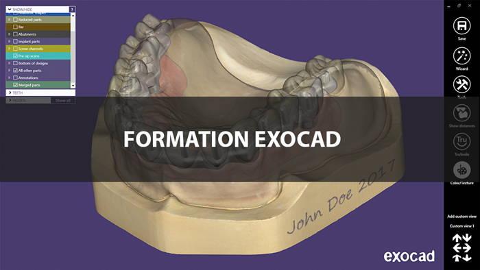 Formation logiciel CAO Exocad