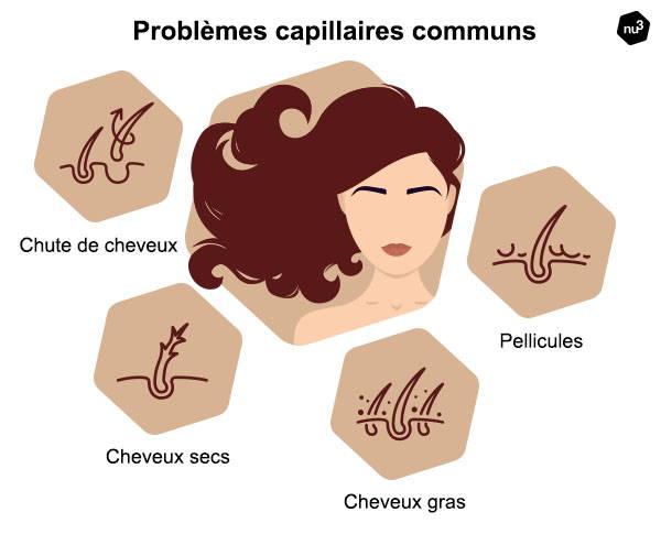 Problèmes de cheveux fréquents