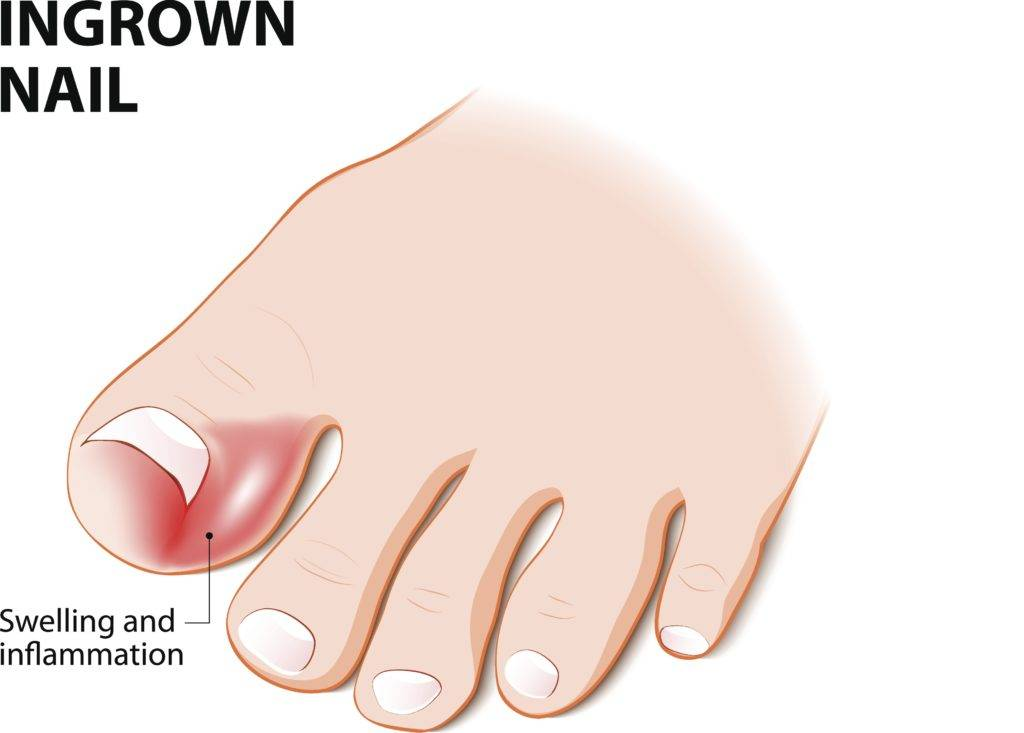 How To Get Rid Of A Painful Ingrown Toenail | Premier Foot & Ankle Center