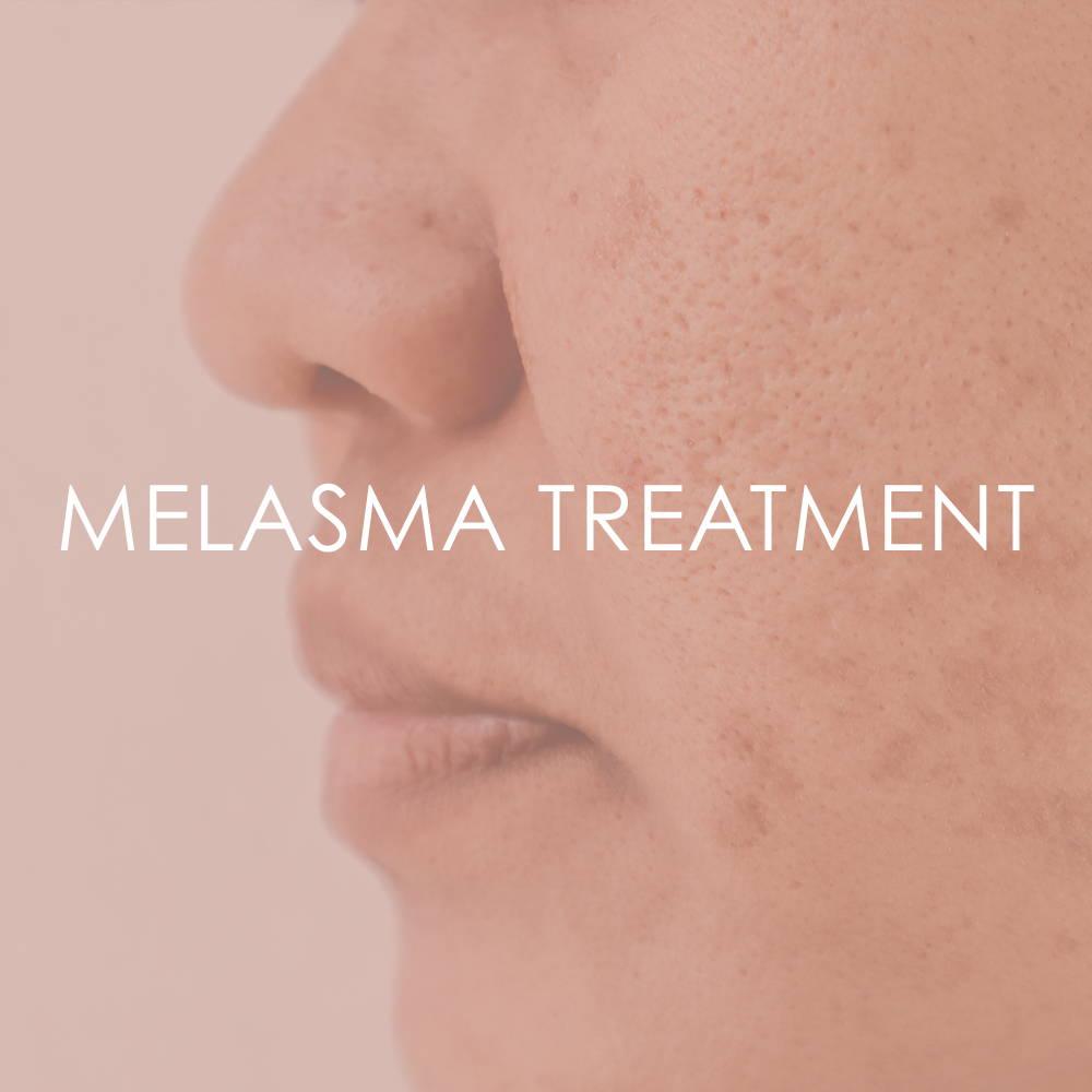 Melasma treatment at Revita Skin Clinic in Mississauga