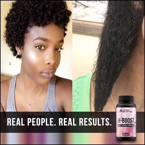 H-Boost Hair Growth Formula Results