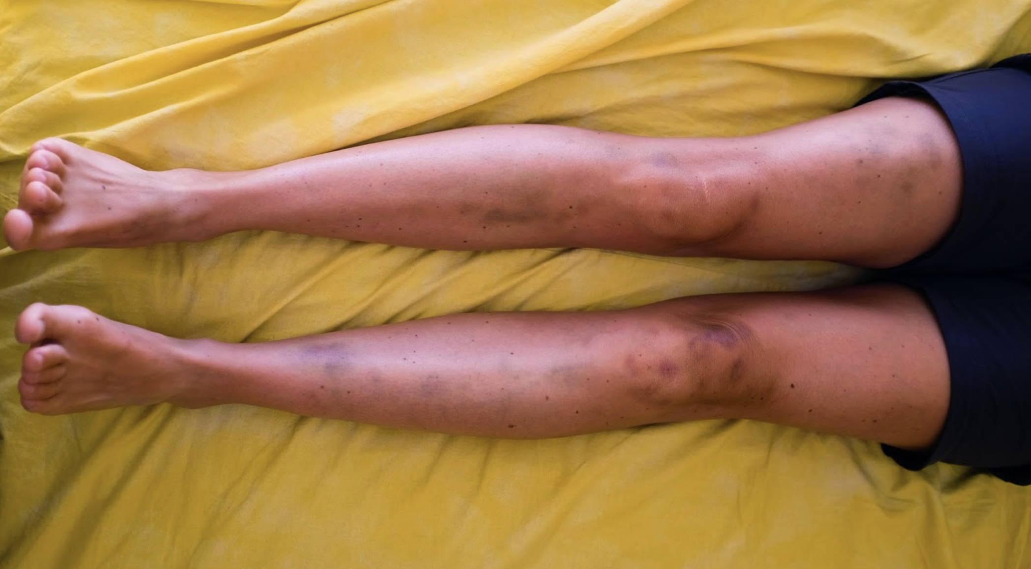 Collagen Peptides For Minimizing Bruises
