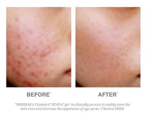 Derma E Vitamin C Serum Before and After Testimonials