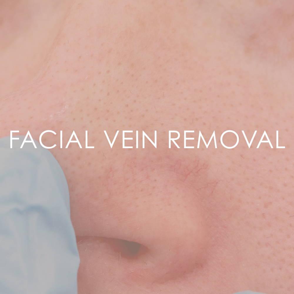 Facial vein removal at Revita Skin Clinic Mississauga
