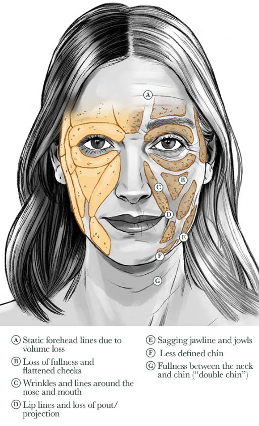 Facial Fat Pad Aging