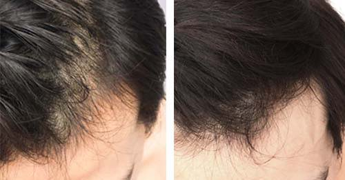 lllt laser cap stop hair fall balding cure results before and after photo
