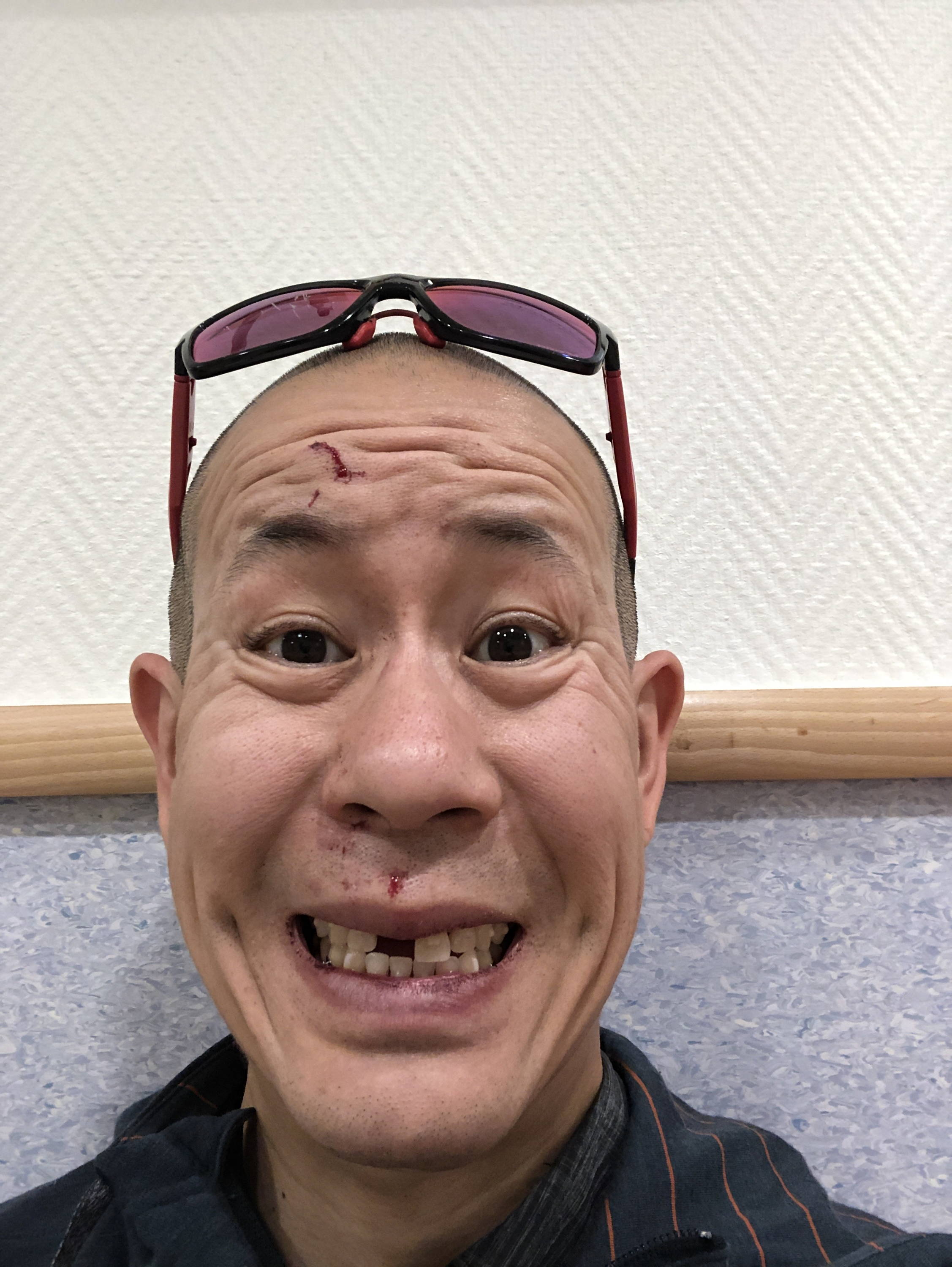 James Huang  with a cut on his forehead and a missing front tooth