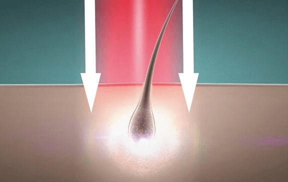 HairMax Light Intensity