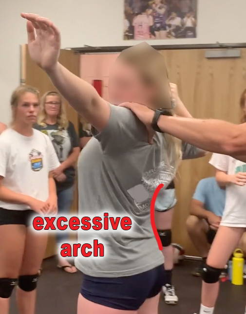 vball player with excessive back arch