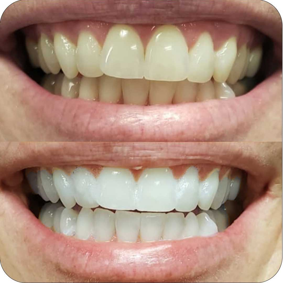 Smilepro Worldwide At Home Teeth Whitening Results