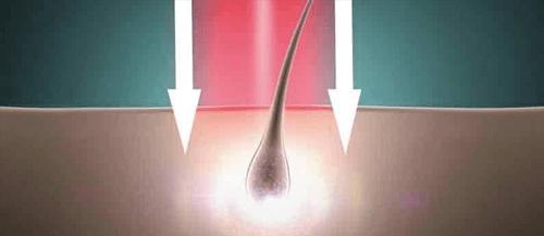 HairMax Laser Intensity