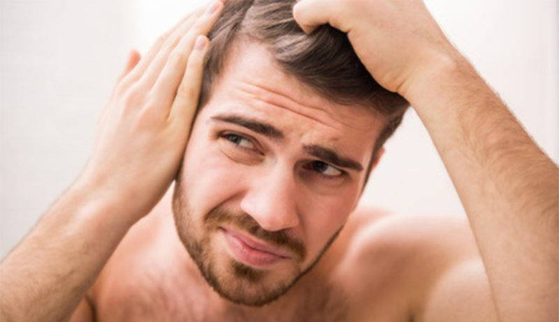 The Most Common Impacts Hair Loss Has On a Man's Life