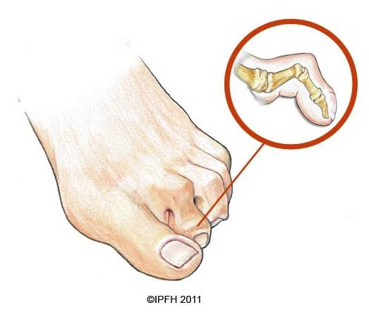 What Is A Hammertoe? Premier Foot & Ankle Center