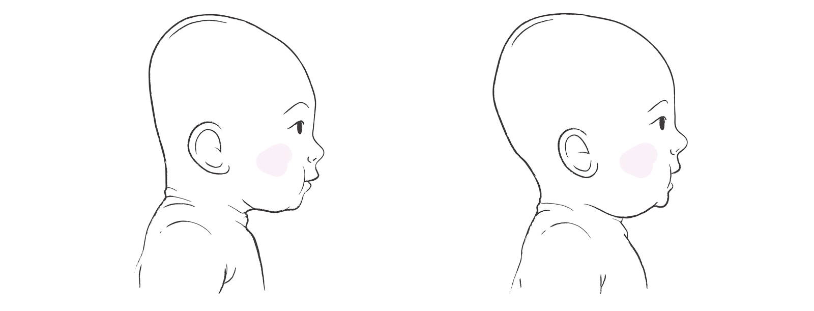 Illustration of a baby with plagiocephaly next to a baby without.