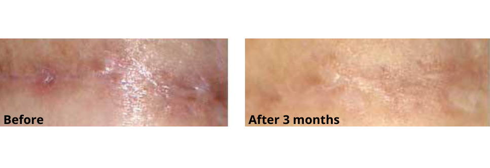 Breast Scar Before and After Using Skinuva Scar for 3 Months