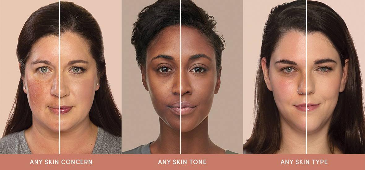 any skin concern any skin tone any skin type