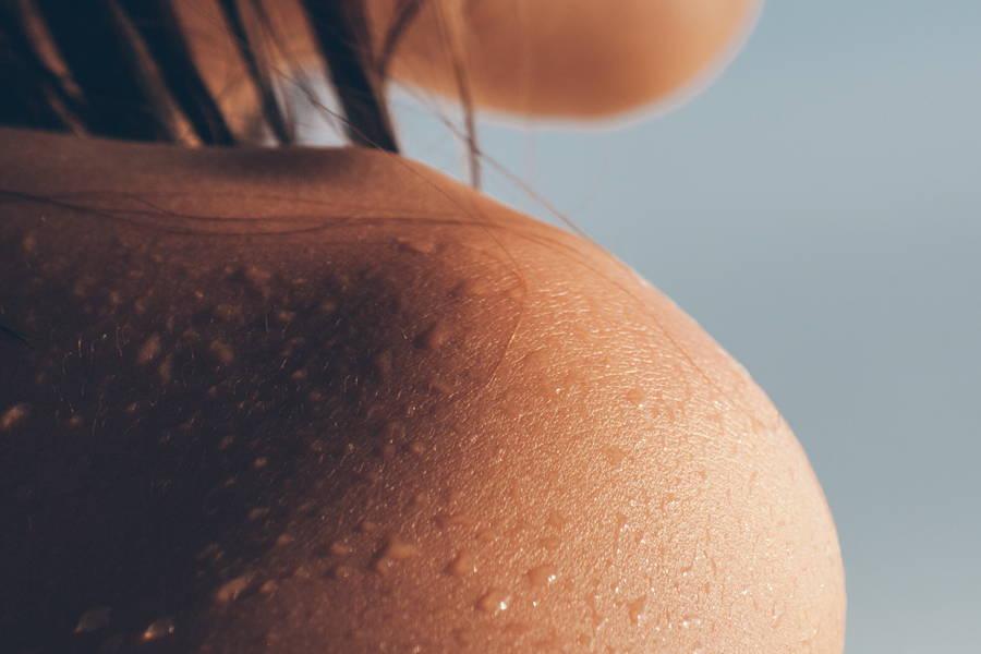 moist skin