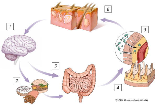 Gut-skin-brain axis