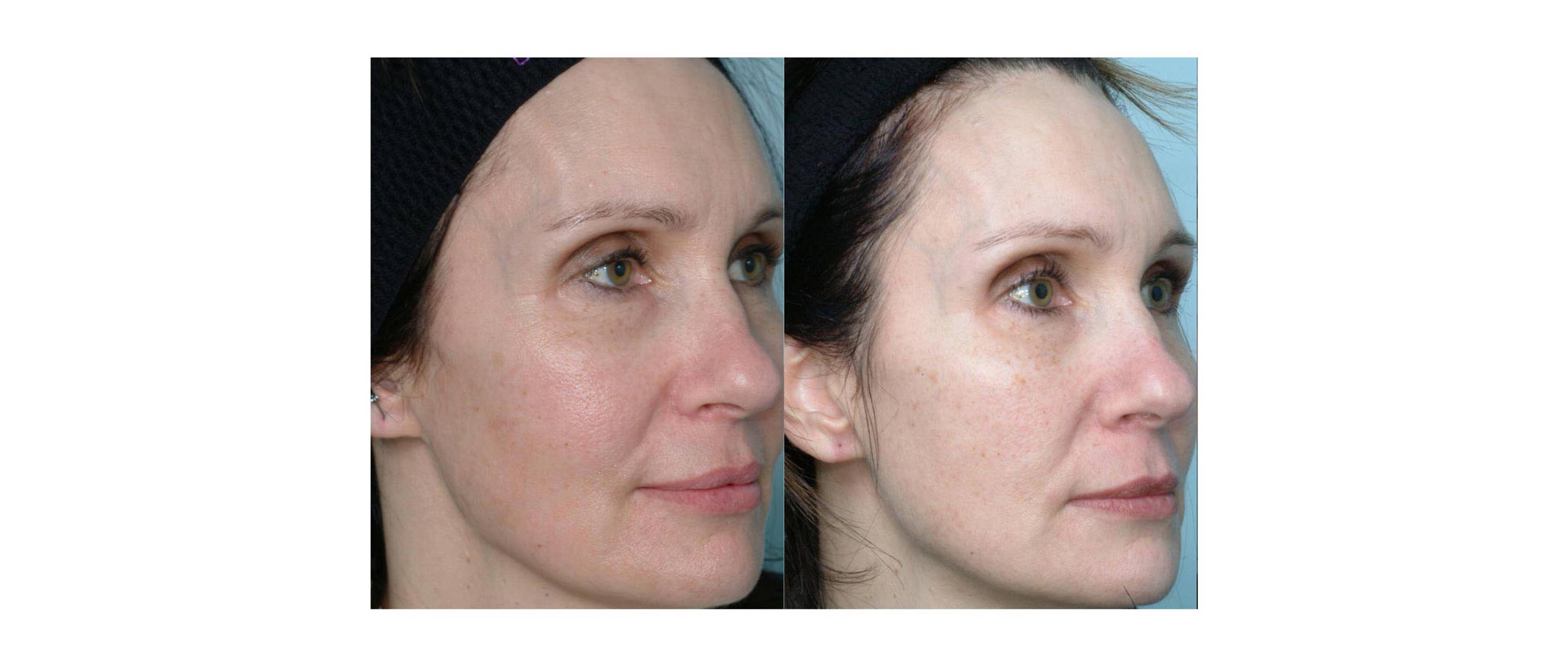 woman results after wearing deppatch with melasma
