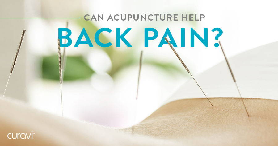 Can Acupuncture Help Back Pain