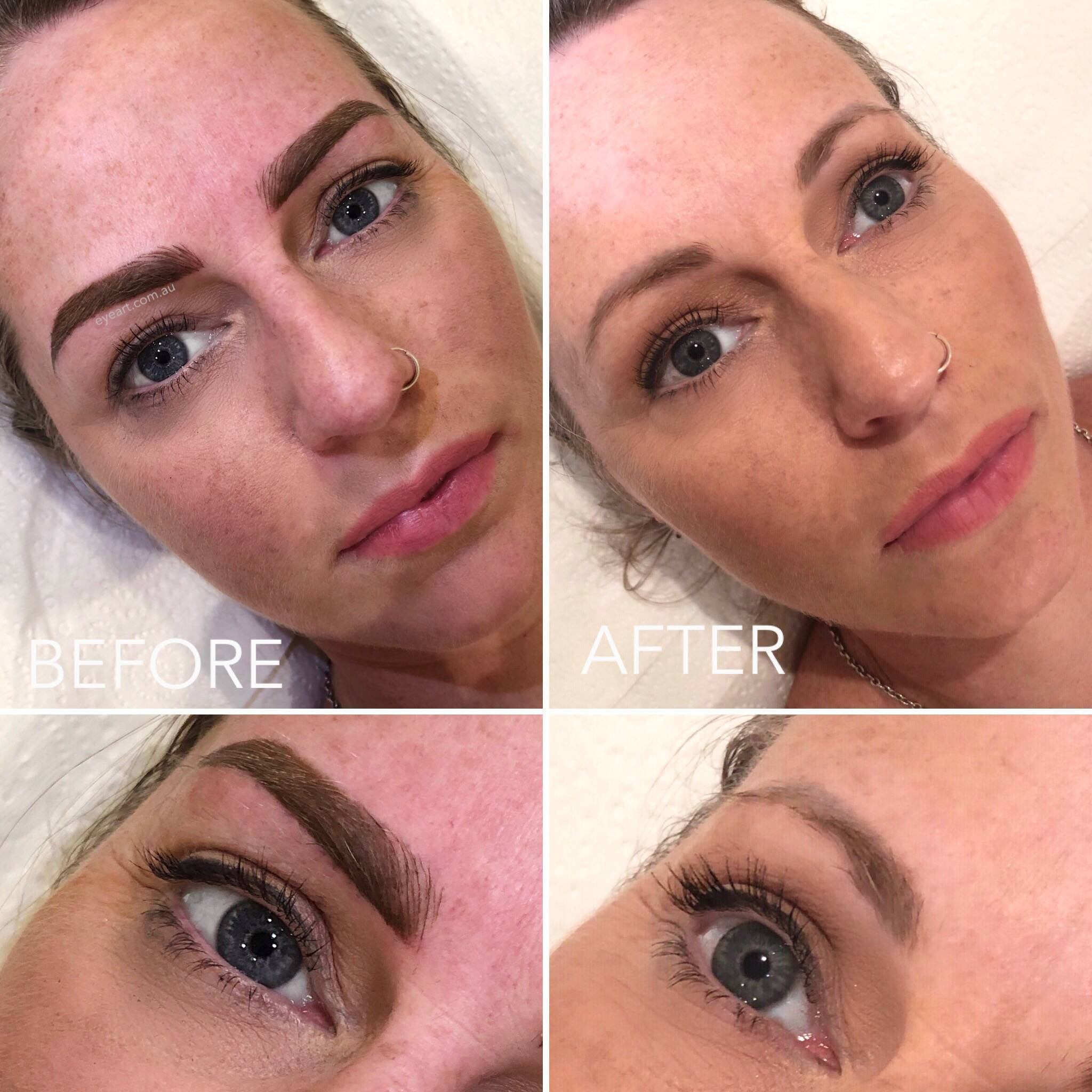 Eyebrow Tattoo Correction and Removal in Melbourne