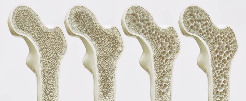 vegan-collagen-for-osteoporosis