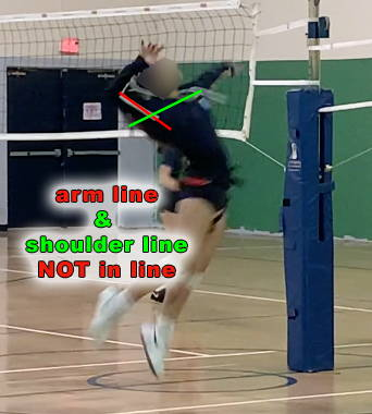 vball player with high elbow