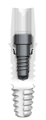 XT Dental Implant System