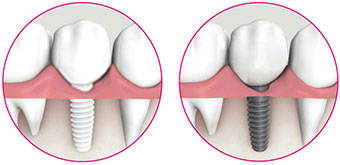 Ceramic dental implant vs titanium dental implants