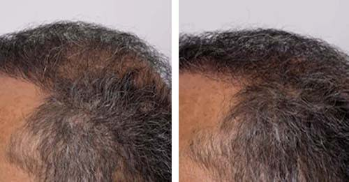 natural hair cure before and after laser cap