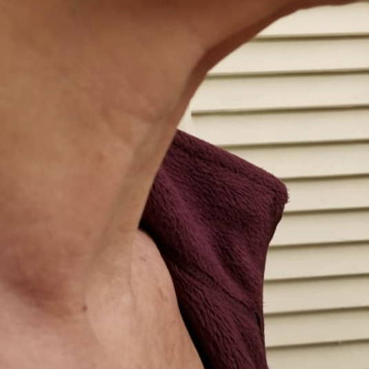 age control neck (after)