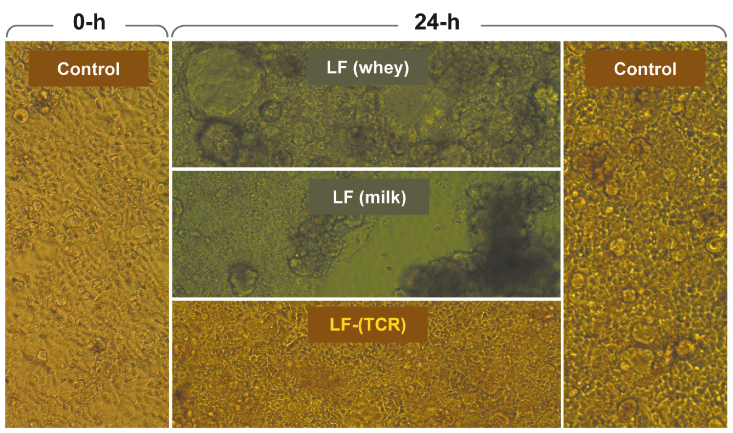 intestinal cell lining preserved by lactoferrin TCR