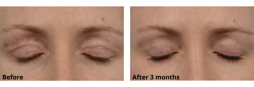 Upper Eyelid Scar Before and After Using Skinuva Scar for 3 Months